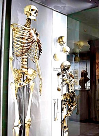 "DNA from skeleton of Charles Byrne, the ""tallest man in Ireland,"" shows a common ancestry with five families from the North."